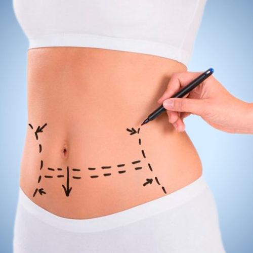 Los avances en la abdominoplastia suponen menos tiempo de recuperación tras la cirugía
