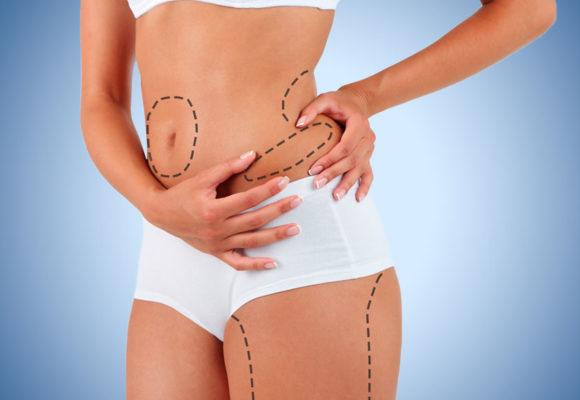 Últimos avances en liposucción